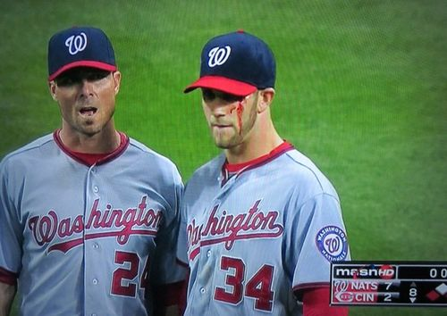 Seriously: Bryce Harper Hits Himself in the Face, Gets 10 Stitches